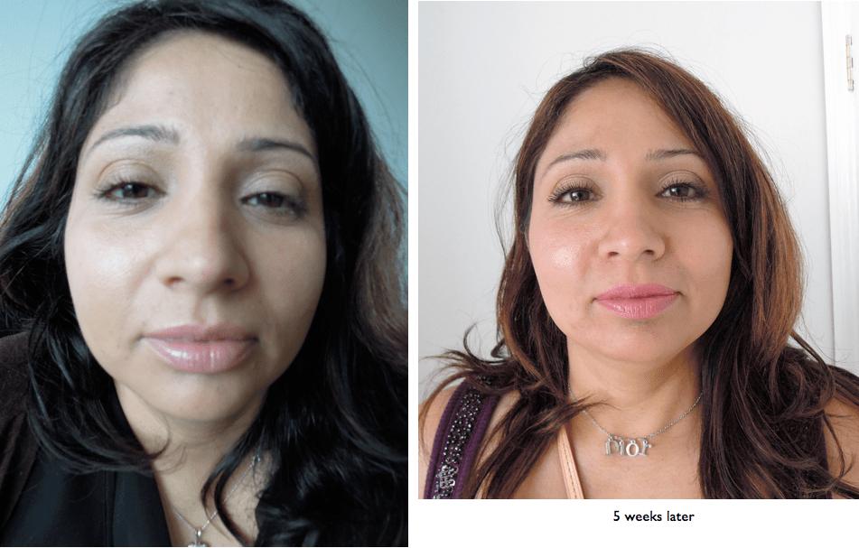 skin treatment clinic brighton